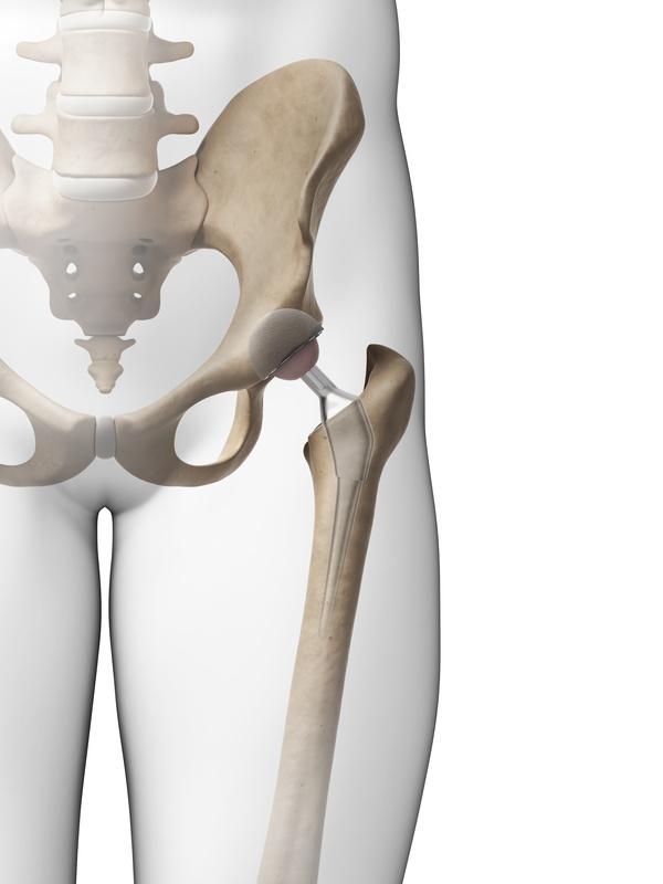 Złamanie szyjki kości udowej – ważne informacje