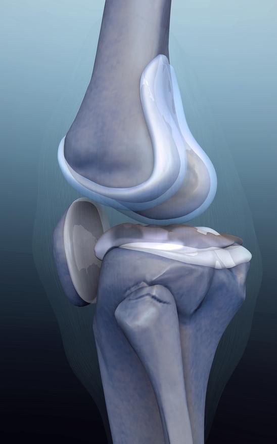 Problemy z bólem stawu kolanowego nie pozwalają Ci normalnie funkcjonować? Dowiedz się o nich więcej!  Część IV Uszkodzenia chrząstki stawowej