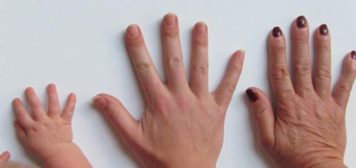 Diagnoza – palec trzaskający. I co dalej?