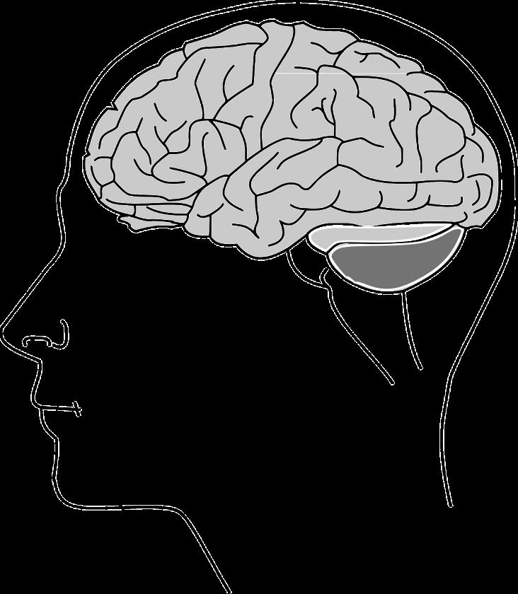 Udar mózgu – te objawy musisz koniecznie poznać