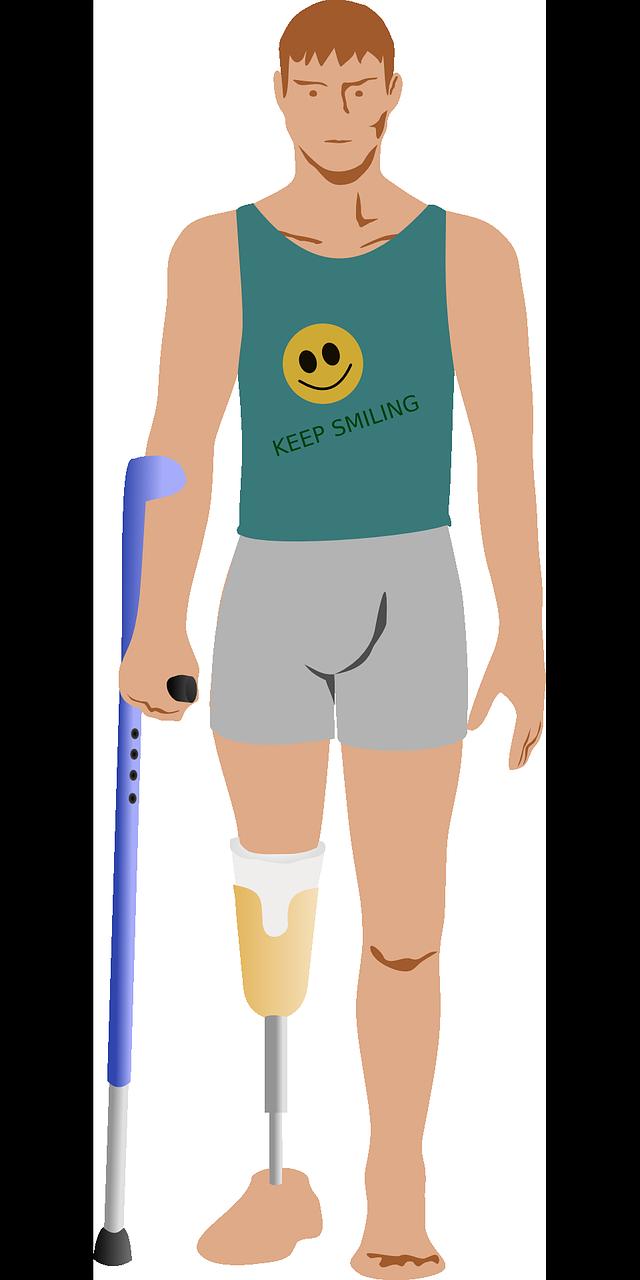 Amputacja kończyny dolnej – fizjoterapia