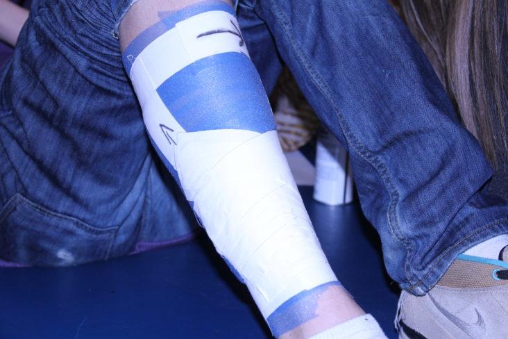 Zapalenie okostnej kości piszczelowej czyli Shin Splints